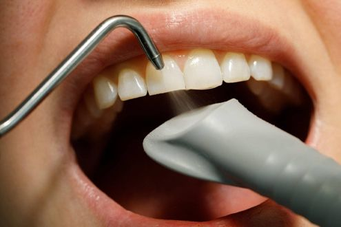 Виды чистки зубов