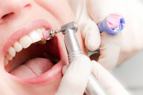 Преимущества профессиональной чистки зубов