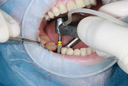 Установка имплантов Astra Tech